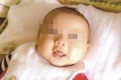 """""""多囊""""患者2年不孕 在郑州长江"""
